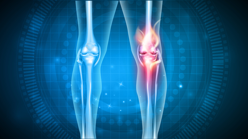 Healthy and injured knees