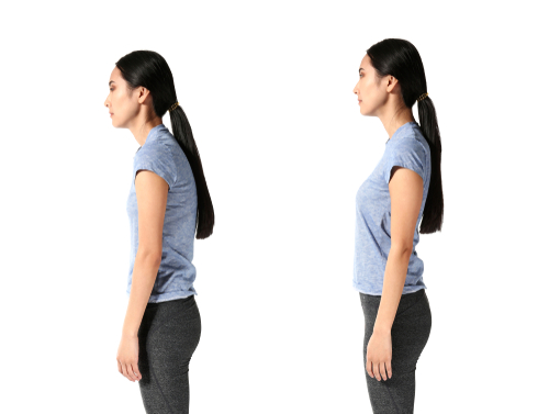 Woman with bad and good walking posture